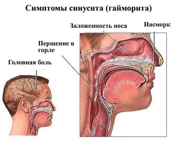 Как проводят лечение гайморита медом