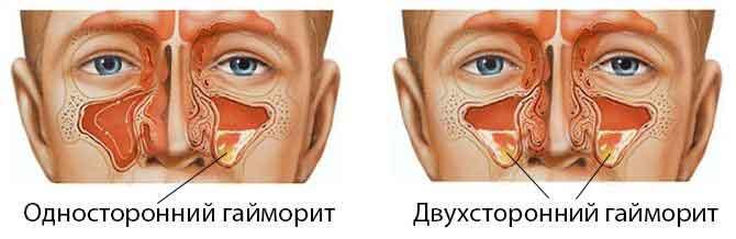 Хронический левосторонний гайморит