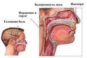Чем лечить хронический синусит у взрослых в домашних условиях 217